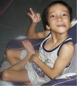 cerebral palsy  benda acupuncture, acupunture,acupunture in rajasthan,acupunture in india,acupunture in jodhpur,jodhpur,acupuncturist india,acupuncture specialist, www.acupunture.co.in, dr. benda, dr hemant benda, acupuncturist, cerebral palsy, cerebral palsy treatment, cerebral palsy treatment in india, slip disc, knee pain(o.a.), migraine, weight loss, cervical pain, sciatica, paralysis, height increase, benda acupuncture, acupunture, acupunture in rajasthan, acupuncture treatment in india,acupuncture in india, acupuncture in jodhpur, jodhpur, acupuncturist india, acupuncture specialist, www.acupunture.co.in, dr. benda, dr hemant benda, acupuncturist, cerebral palsy, cerebral palsy treatment, cerebral palsy treatment in india, cerebral palsy treatment in jodhpur, cerebral palsy treatment by acupuncture, cerebral palsy, pulsy, palsy, slip disc, knee pain(o.a.), migraine, weight loss, cervical pain, sciatica, paralysis, height increaselsy treatment