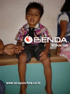 Benda Acupuncture
